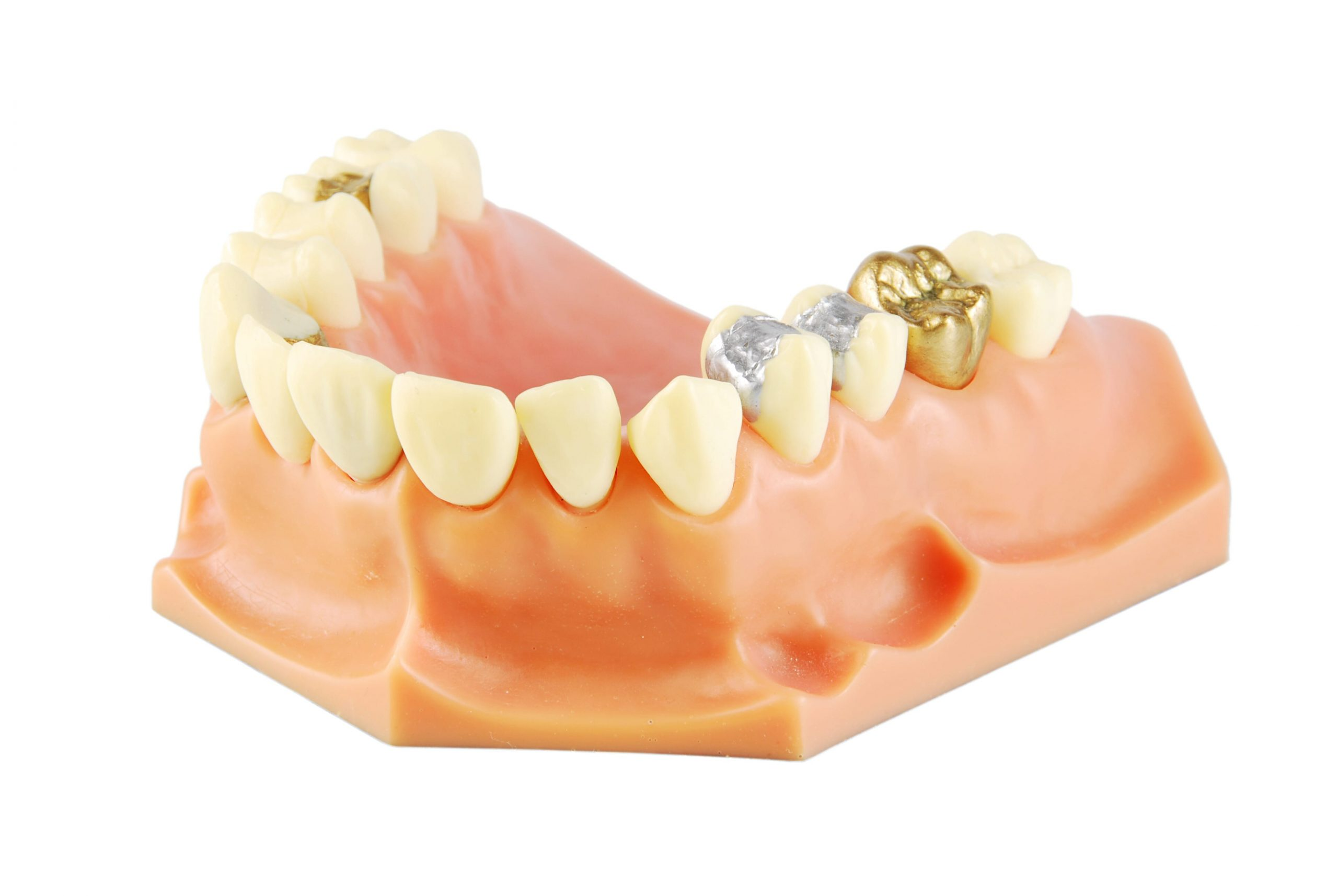 teeth after dental crowns and bridges treatment