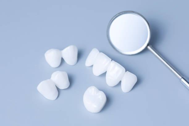 process of dental veneers for cosmetic purposes in dental clinics