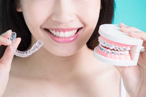 choice of braces; one being Invisalign