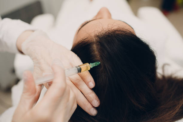 Needle mesotherapy for hair