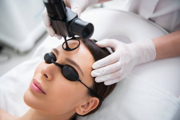 pretty lady on fractional laser rejuvenation of forehead