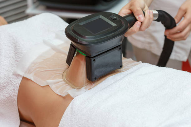 Fat reduction procedure in Cryolipolysis