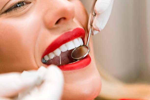 Dental Filling picture