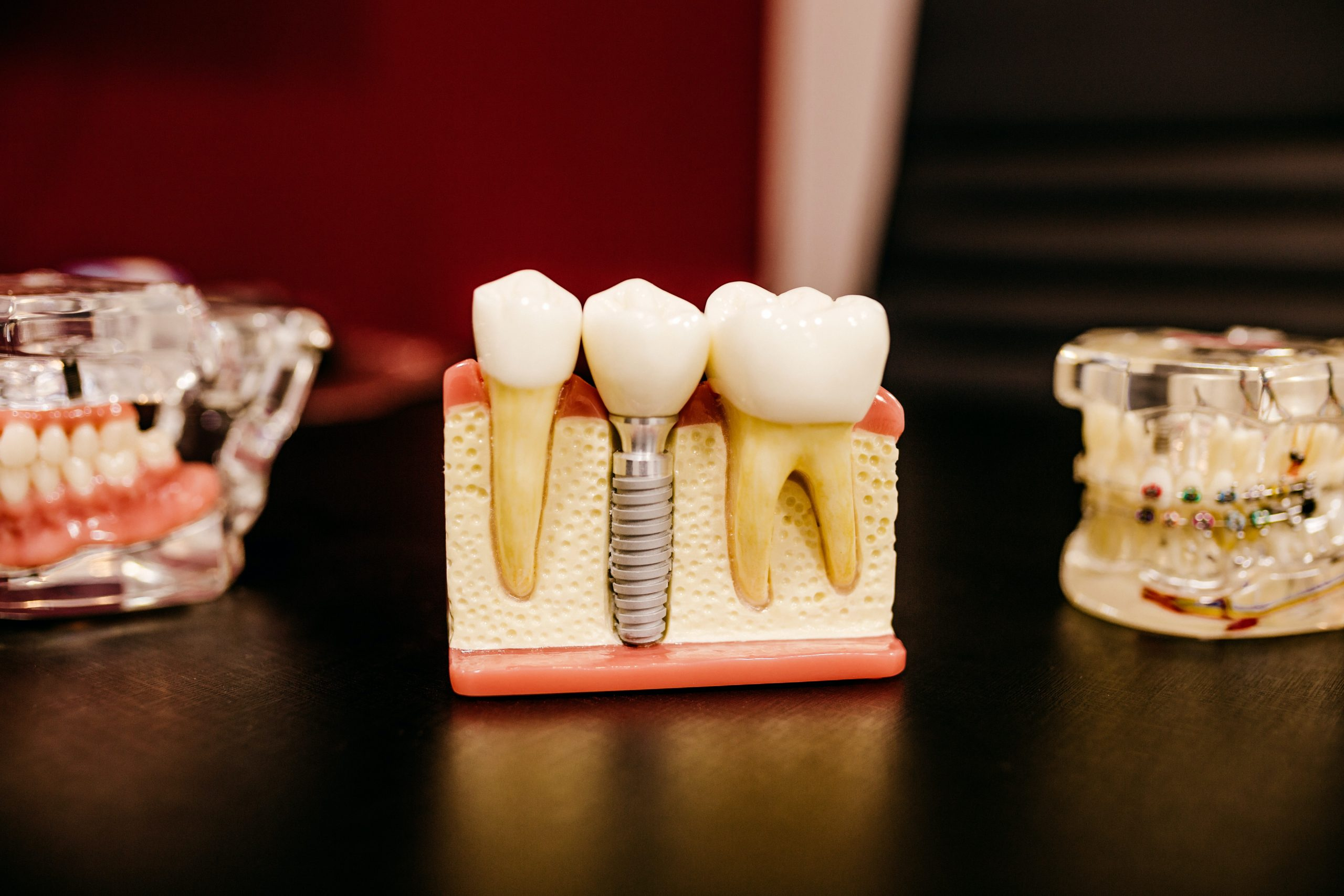 What you need to know about the root canal treatment