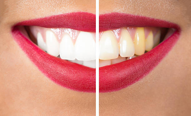 Teeth After and Before Whitening