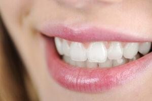 Teeth flossing is important