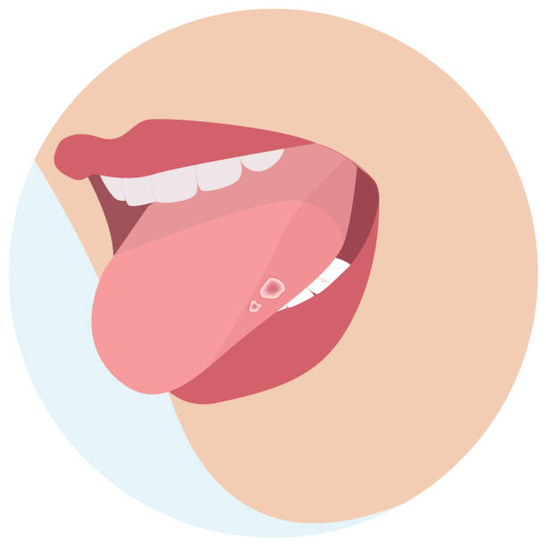 Home Remedies of Dry Mouth