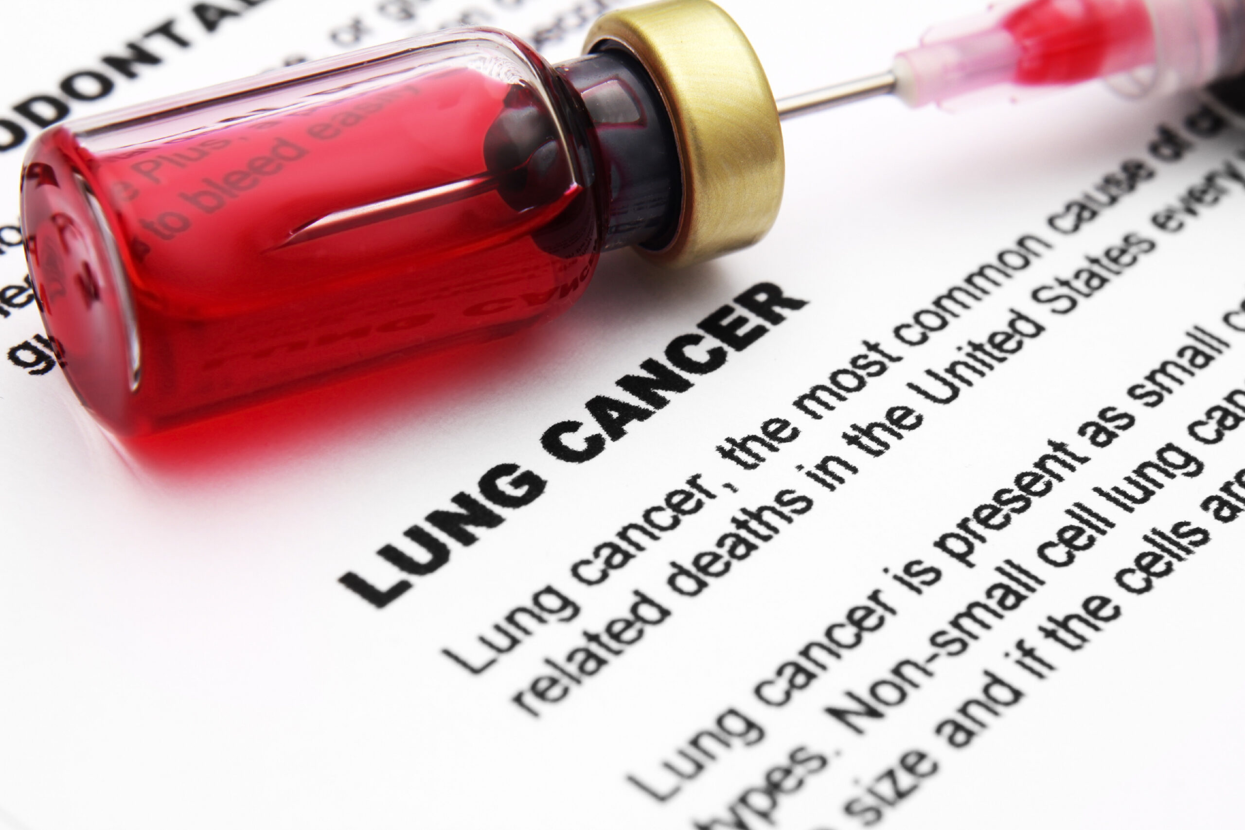 Lung cancer scaled