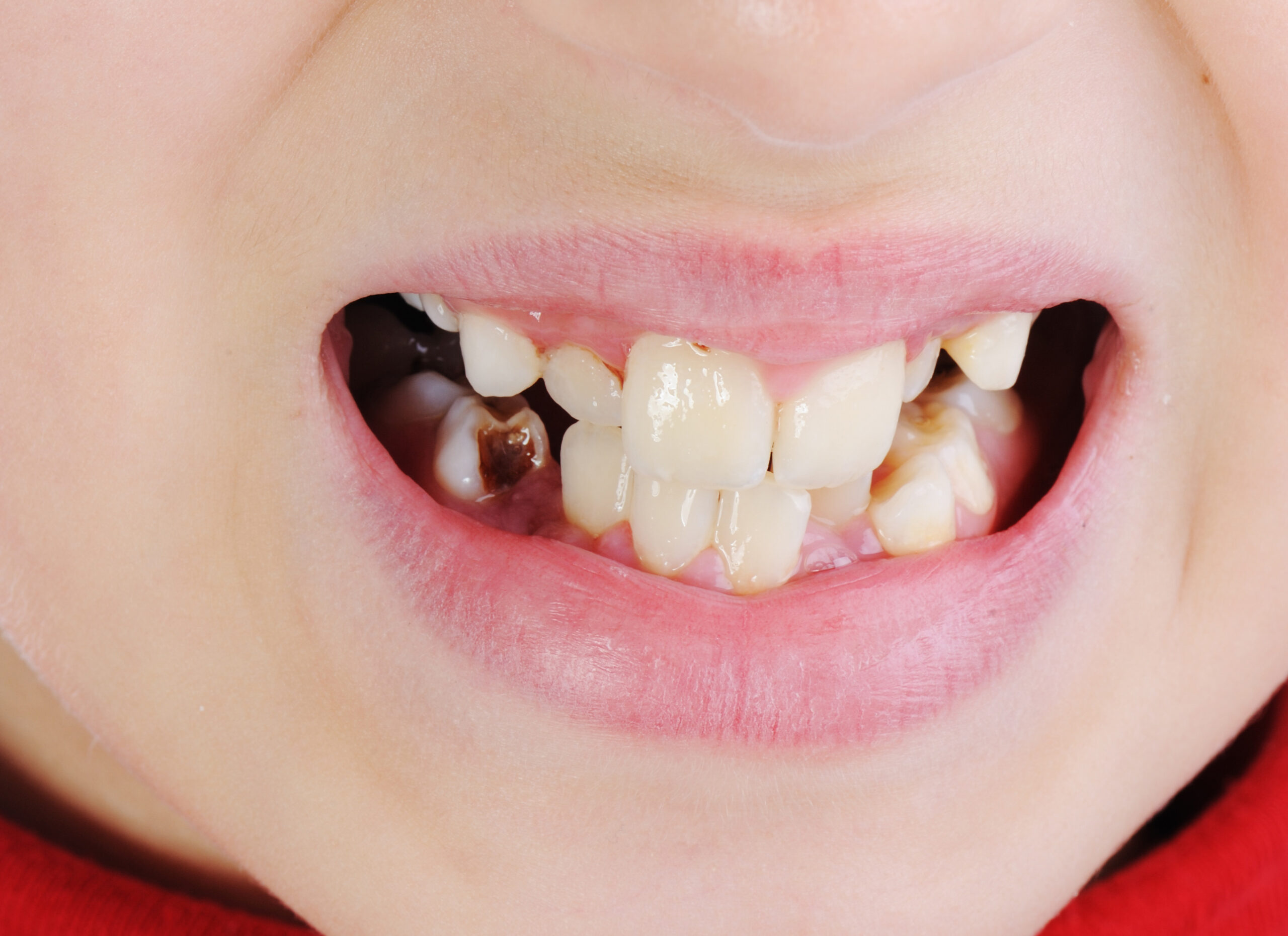 teeth stains causing decay