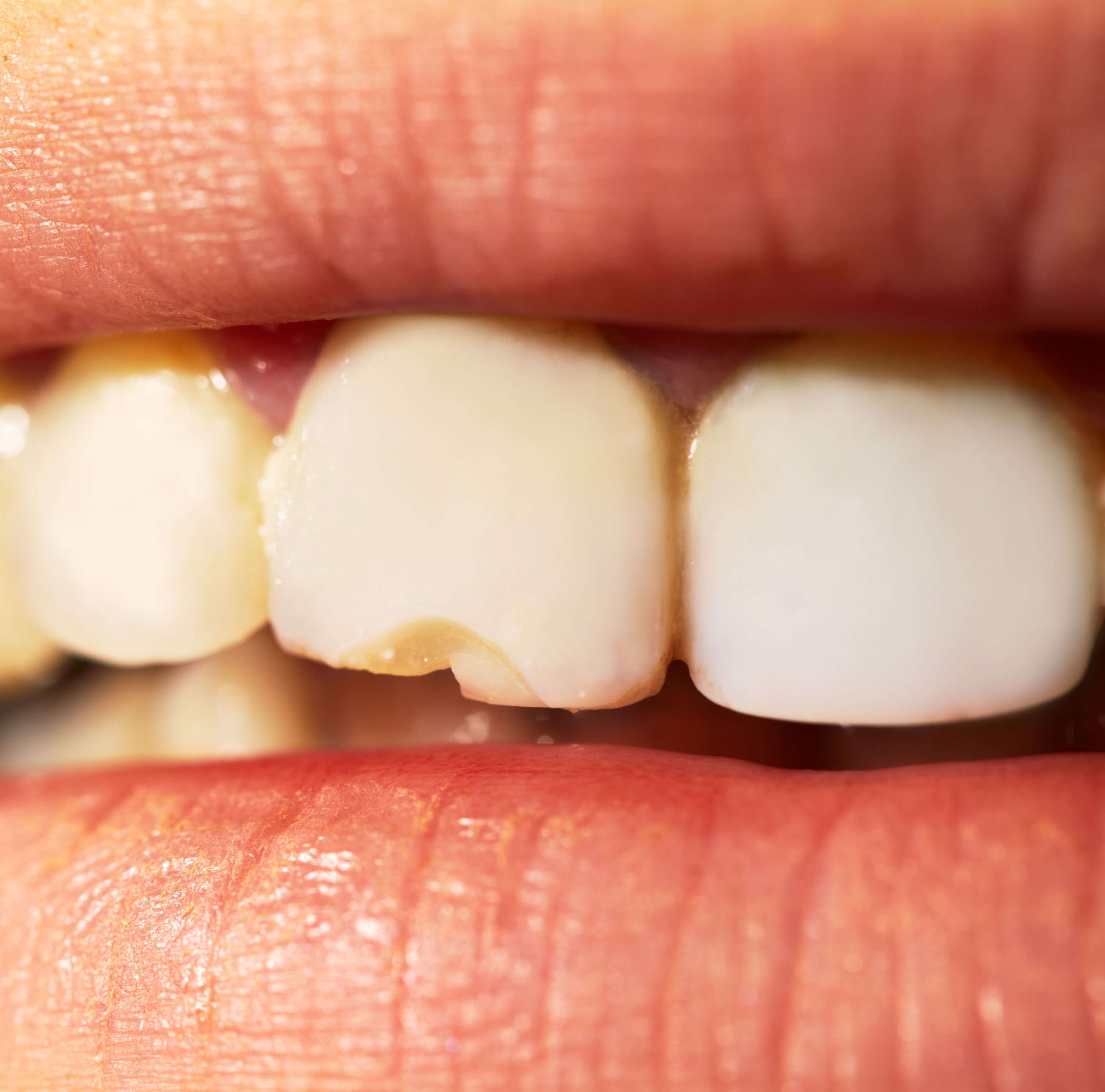 yellowing teeth are a sign of teeth stains