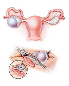 Anatomy of ovarian cyst