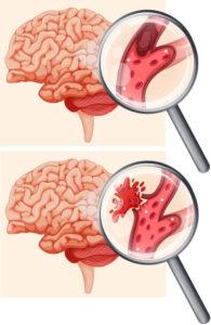Types of strokes in brain