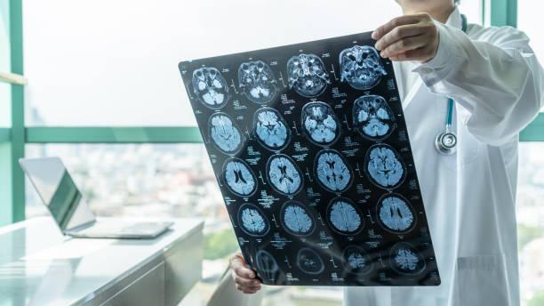 MRI for stroke diagnosis