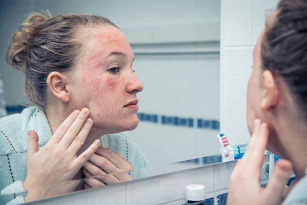 eczema feature image
