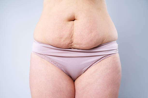 Looking into benefits of liposuction
