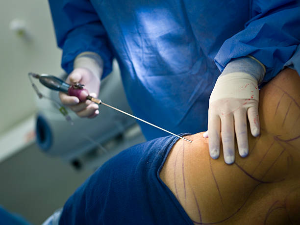 liposuction procedure requires sedation