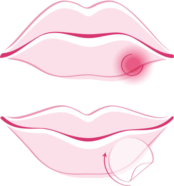 what are signs you have a cold sore