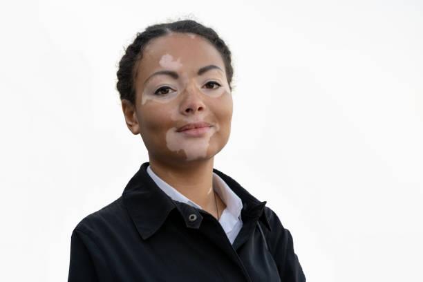 non segmental vitiligo on a woman's face