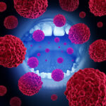 oral-cancer-picture