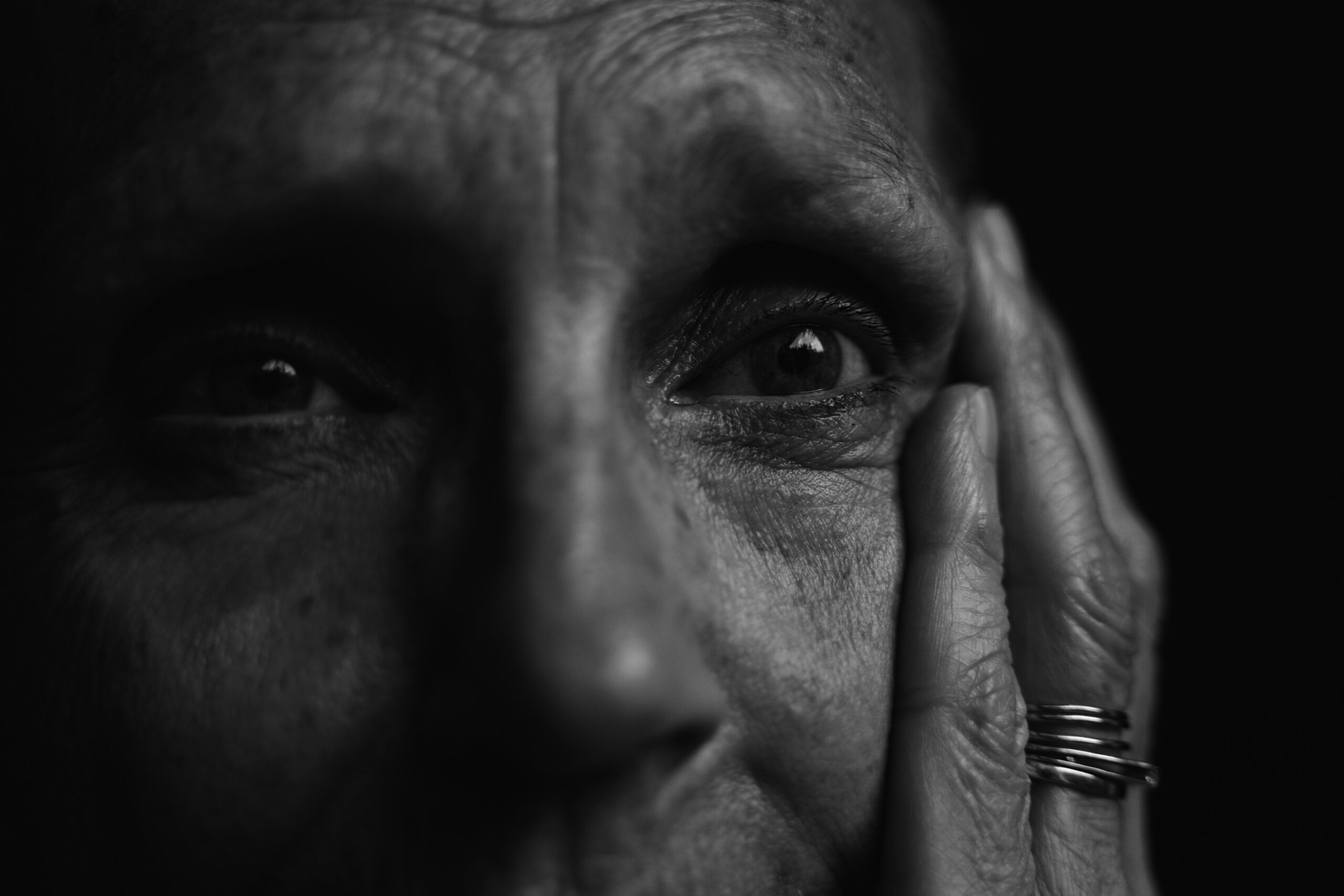 old woman with Alzheimer's disease