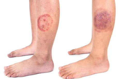 stages of ringworm