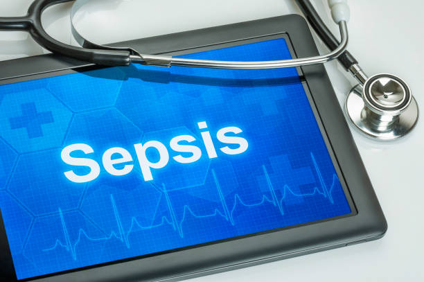 Sepsis meaning