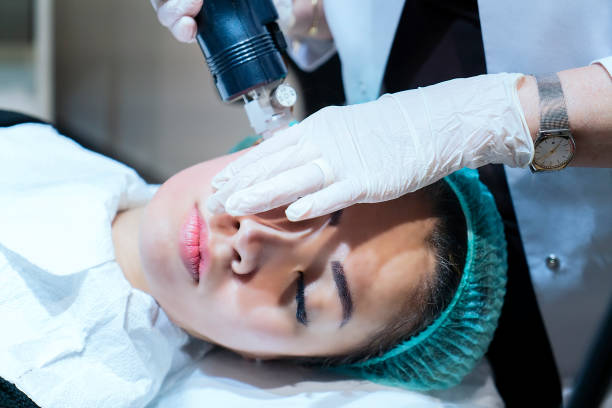 Woman having Intracel radiofrequency microneedling treatment