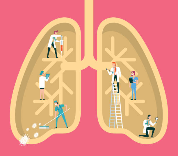 doctors treating lungs