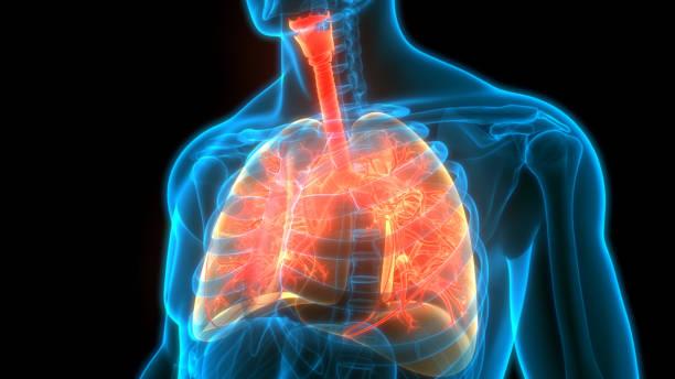 Diagram depicting asthma