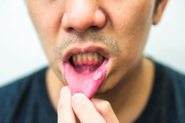 Man showing his mouth ulcers