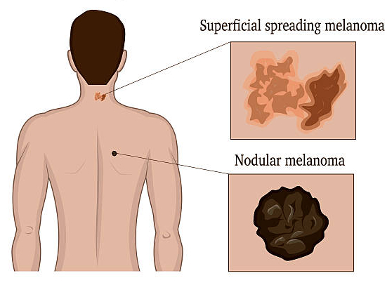Two types of melanoma