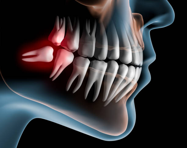 what is a wisdom tooth?
