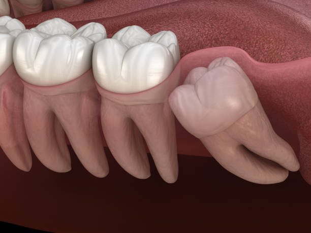 some home remedies are effective healing after wisdom tooth removal